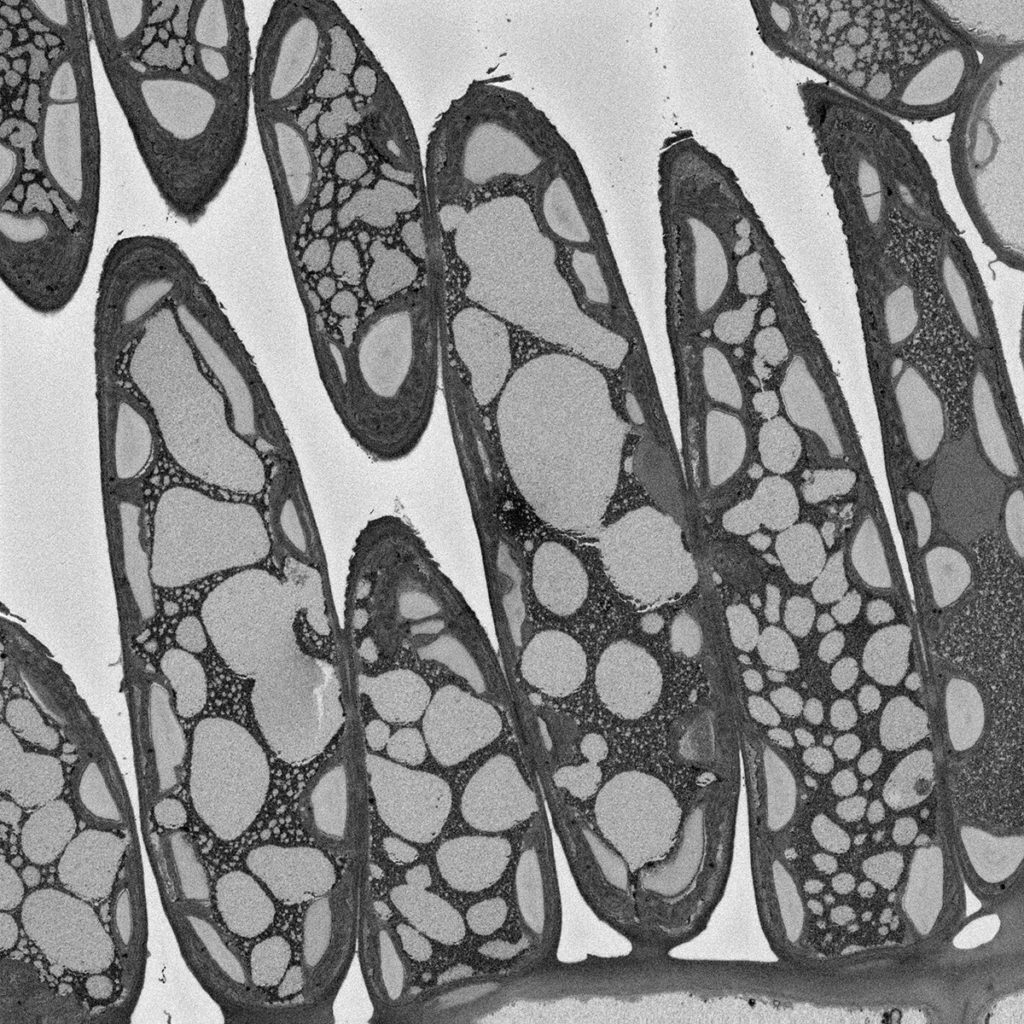 Gum Leaf Cells and Air Spaces - Minh Huynh, Elinor Goodman and Margaret Barbour