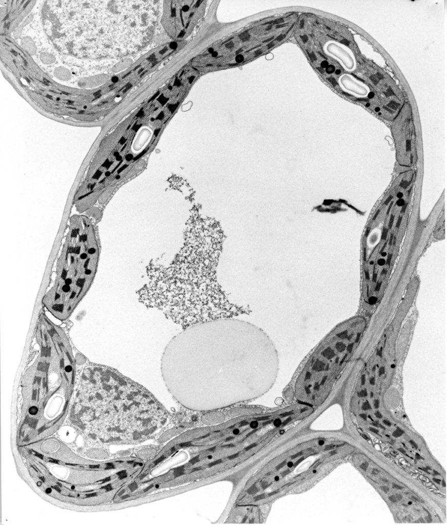 A Plant Cell Full of Chloroplasts - Maret Vesk, University of Sydney