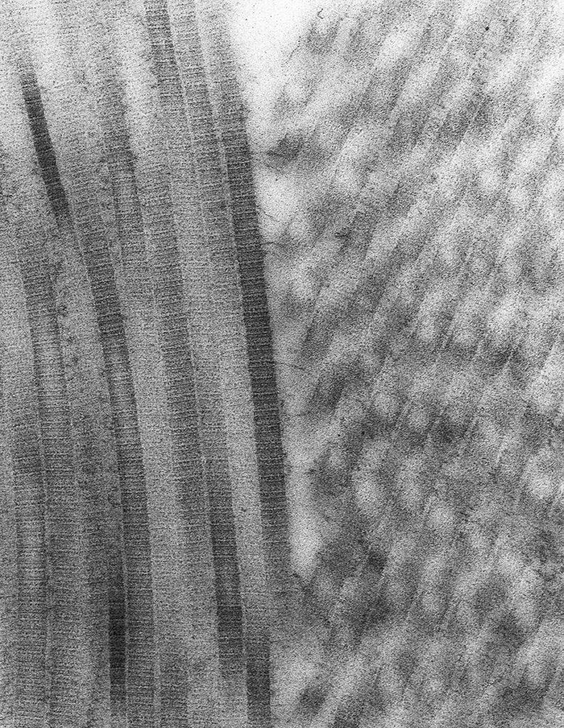 Collagen Fibrils - Anne Simpson, University of Sydney