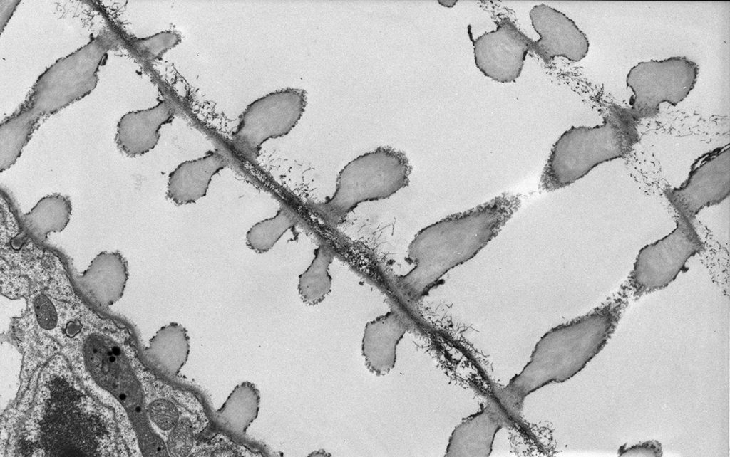 Plant Water Transport Tubes (Xylem) - Anne Simpson, University of Sydney